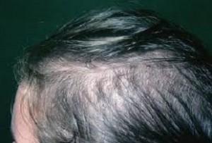 Så kan håravfall se ut för kvinnor