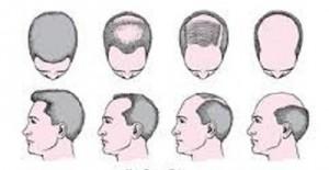 Exempel på hur manligt håravfall kan utvecklas